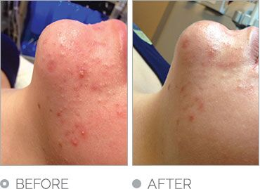 HydraFacial resultaat acne preview